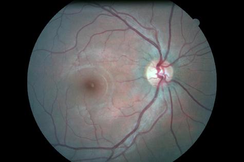 Retina_normal_od_1